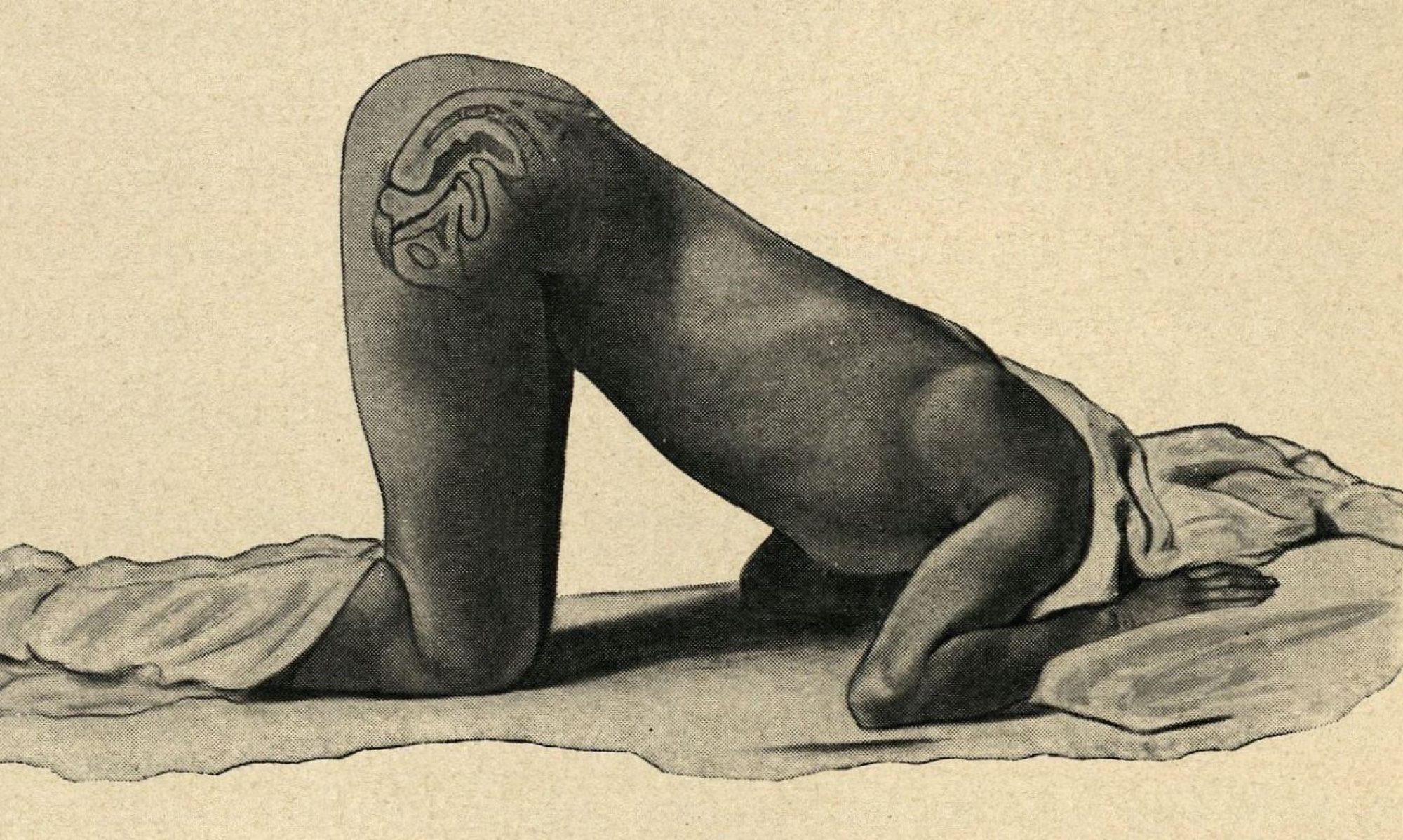 Alyson K. Spurgas